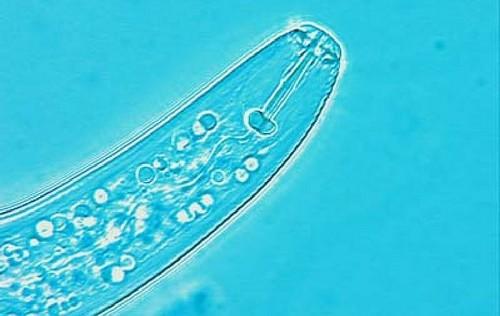 hadatka - Které nemoci a škůdci trápí česnek. Jednoduchý přehled